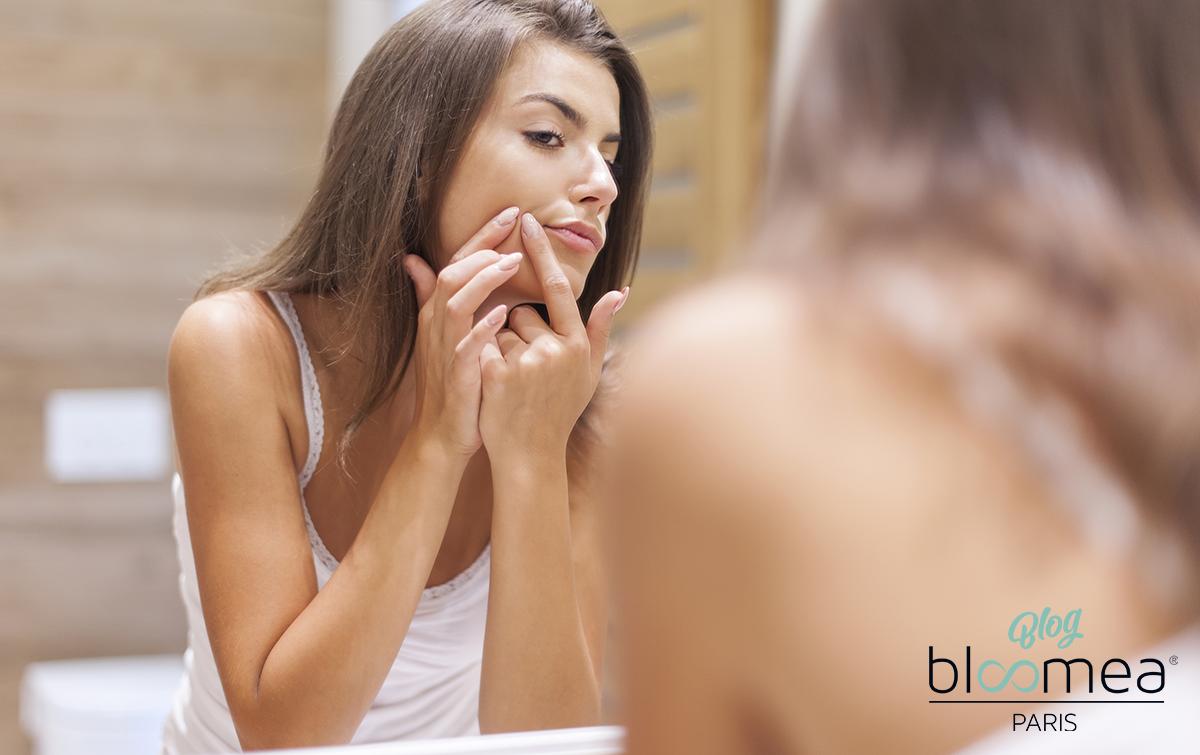Cicatrice d'acné : comment faire disparaître les cicatrices d'acné ?