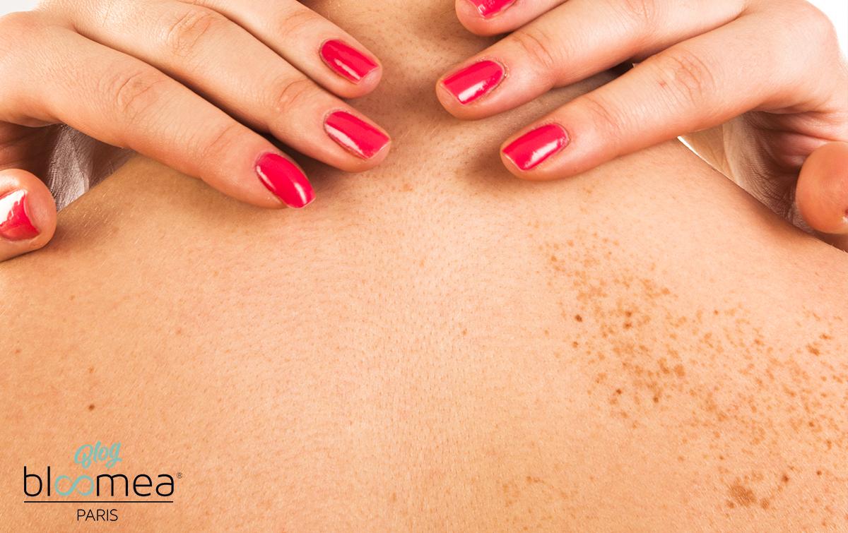 Visage, mains : d'où viennent les taches brunes sur la peau ?